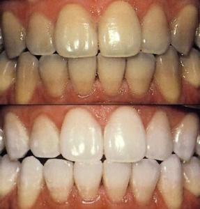 Чистка зубов ультразвуком юго западная
